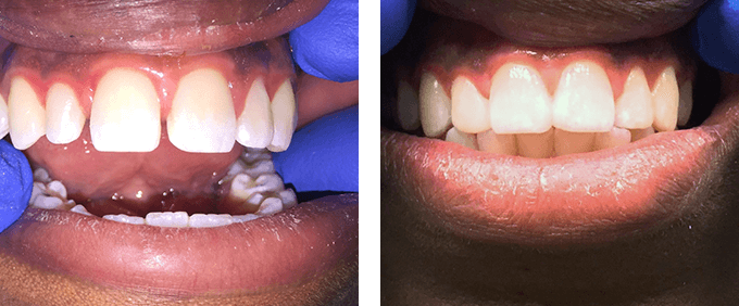 Cosmetic Dentistry Dental Bonding 5