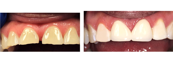 Cosmetic Dentistry Dental Bonding 1
