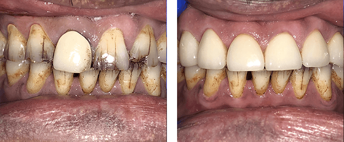 General Dentistry Before After crowns 1