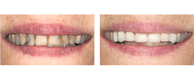 General Dentistry Before After Root canals and crowns 1