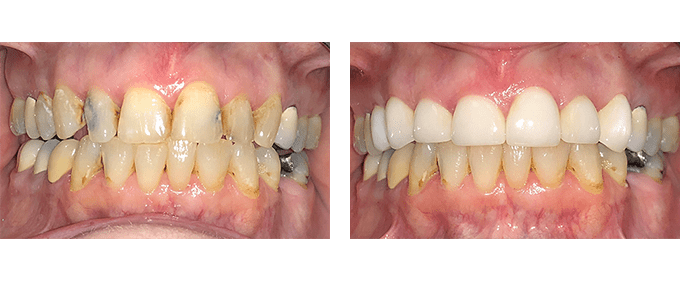 General Dentistry Before After Root canals and crowns 2
