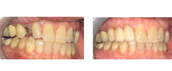 General Dentistry Extraction and Bridges pictures