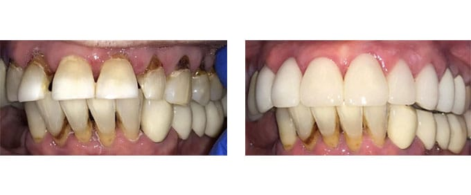 General Dentistry Before After crowns 2