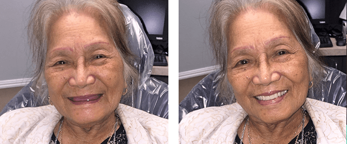 Dentures in Garland Tx