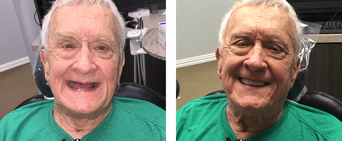 Dentures in Garland, TX