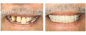 Affordable Dentures in Garland Tx