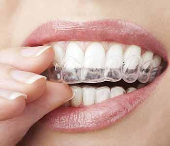 INVISALIGN BRACES: THE HEALTHY WAY TO STRAIGHTEN TEETH IN GARLAND, TX