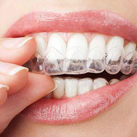 Why the Invisalign Satisfaction Rate For Patients in Garland TX is High