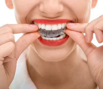 STRAIGHTER TEETH, NO BRACES – INVISALIGN IS THE CLEAR SOLUTION NEAR RICHARDSON, TX