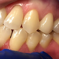 Porcelain Dental Crowns by Perfect 32 Family Dentistry in Garland